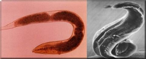 uvula papilloma okozza gyermekkori helminták