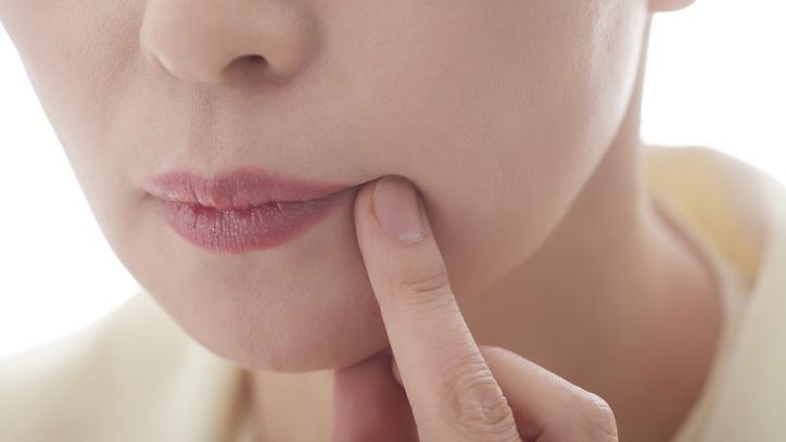 rákot okoz a szájban