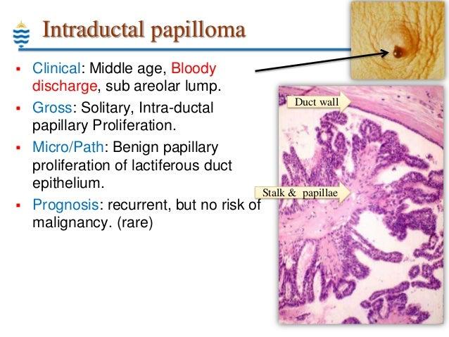 intraductalis papilloma ppt