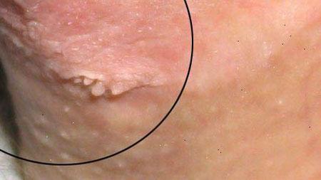 hpv vírus szemölcsökben papilloma vírus ember viszket