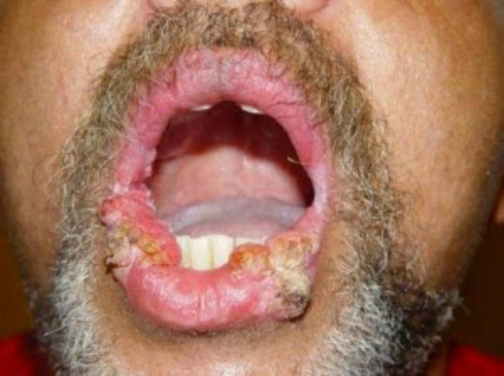 Hogyan lehet eltávolítani a papillómákat a szájban