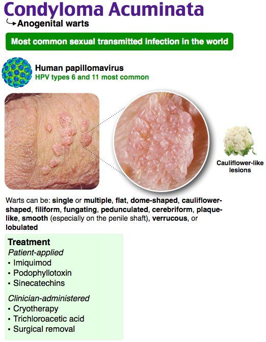 papillomavírus condyloma