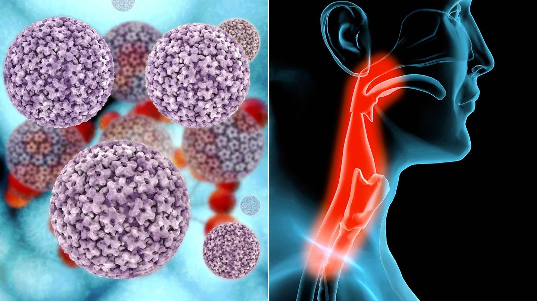 hpv oropharyngealis rák előfordulása