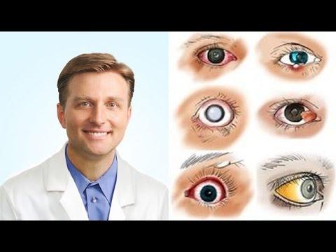férgek a szem kezelés mögött