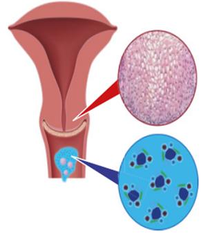 a papilloma vírus pozitív, mivel összehúzódik hogyan kell hámozni a babát