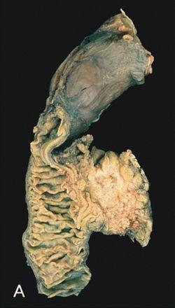 A hasnyálmirigyrák utolsó fázisának tünetei