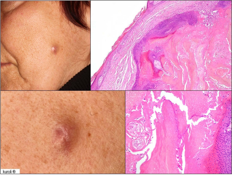 Plakk, folt a bőrön - a Bowen-kór rákmegelőző állapot is lehet