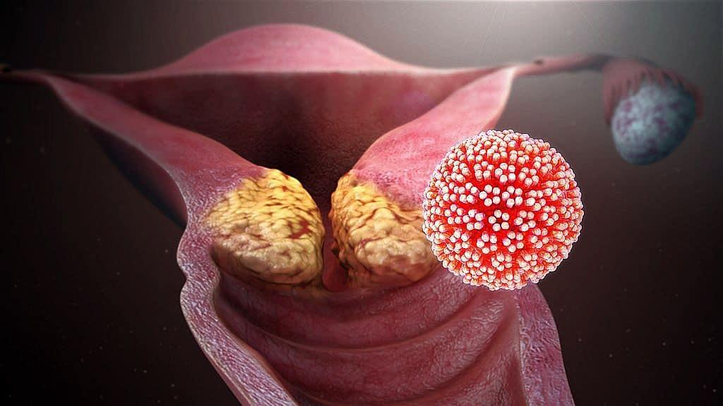 HPV terhesség alatt