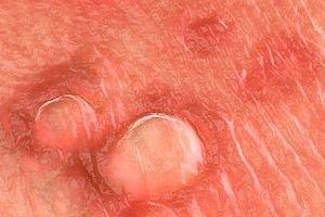 a papilloma szemölcsök kezelik a kezelést szemölcsökkel járó tünetek