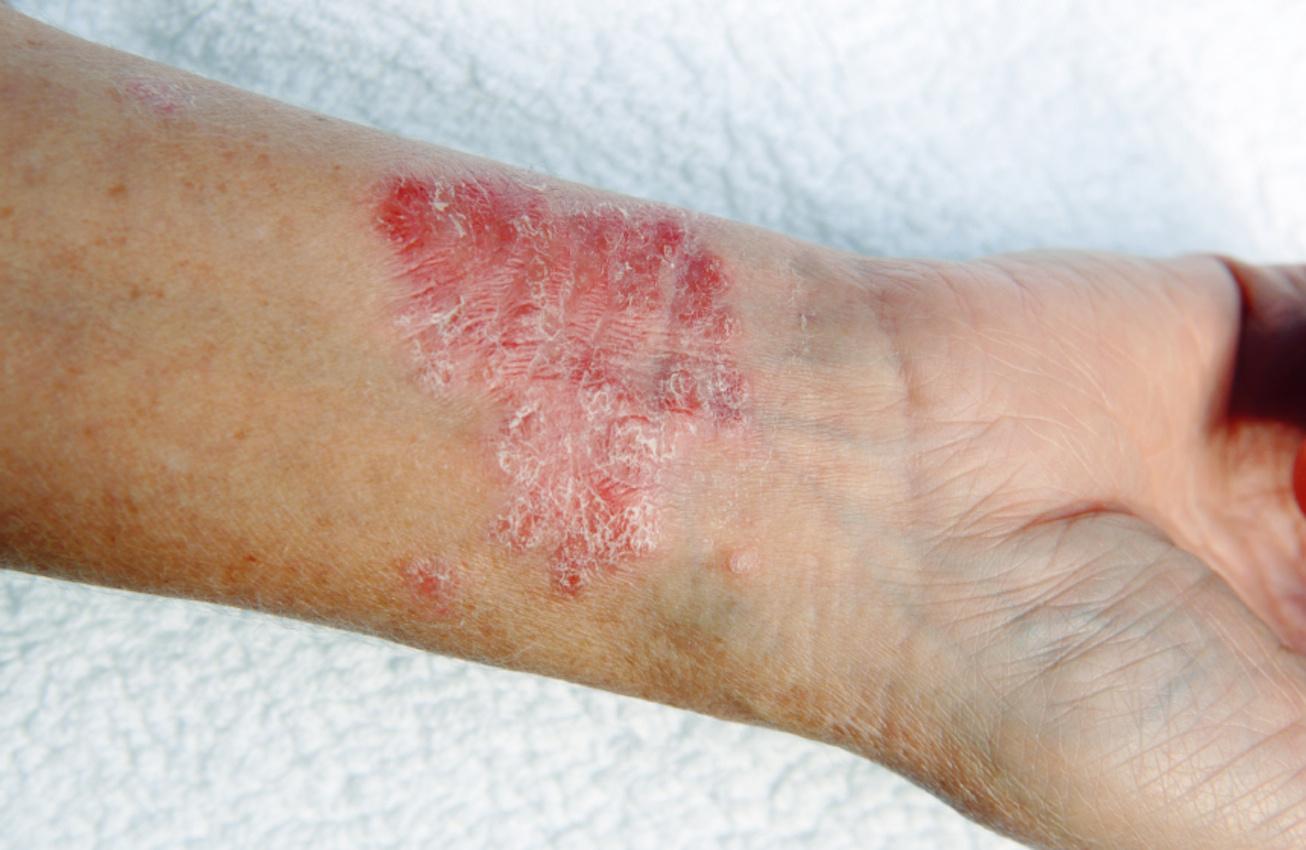 rák, amely bőr