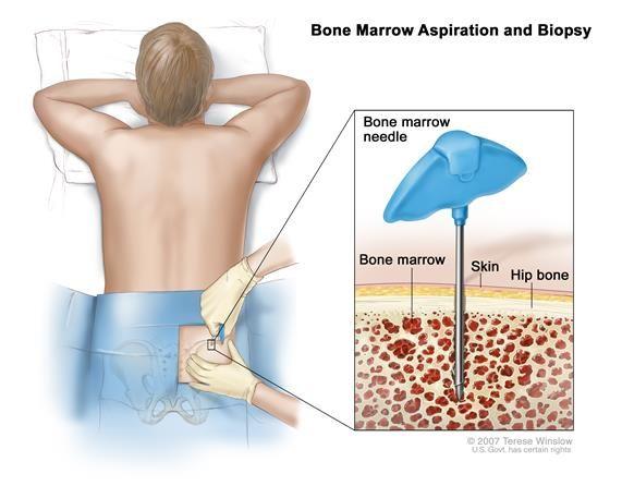 Csontvelődaganatok tünetei és kezelése - HáziPatika