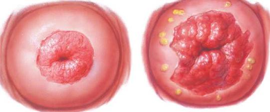 Condylomas terhesség alatt - Óriási condyloma bokor levenshtein
