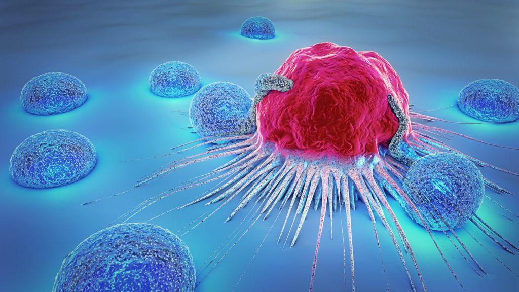 A neuroendokrin daganatok kezelése | Klinikai Onkológia