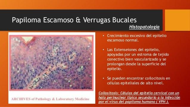a rák kezelhető meghatározza a florid papillomatosisot