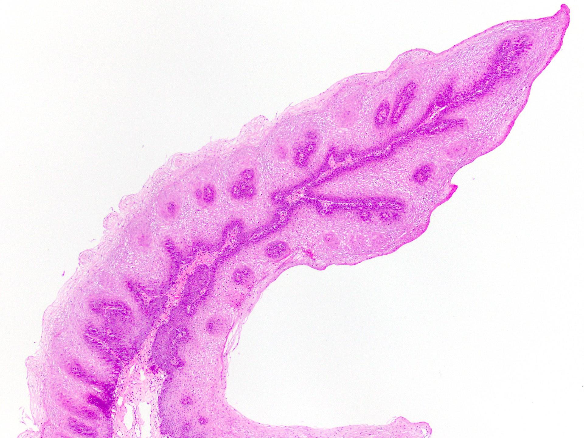 pikkelyes papilloma nyelv hpv talpi szemölcsök moxibustion folyékony nitrogénnel