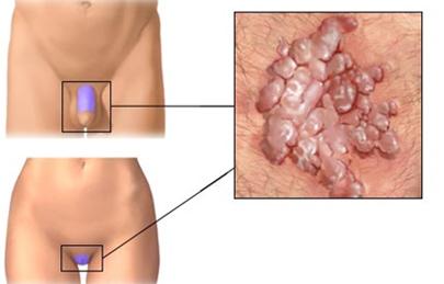 condyloma kezelés és eredmények