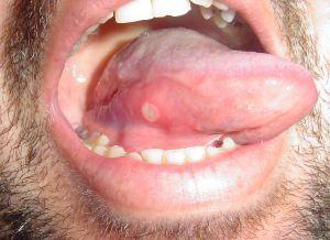 botulinum toxin szemkontúr