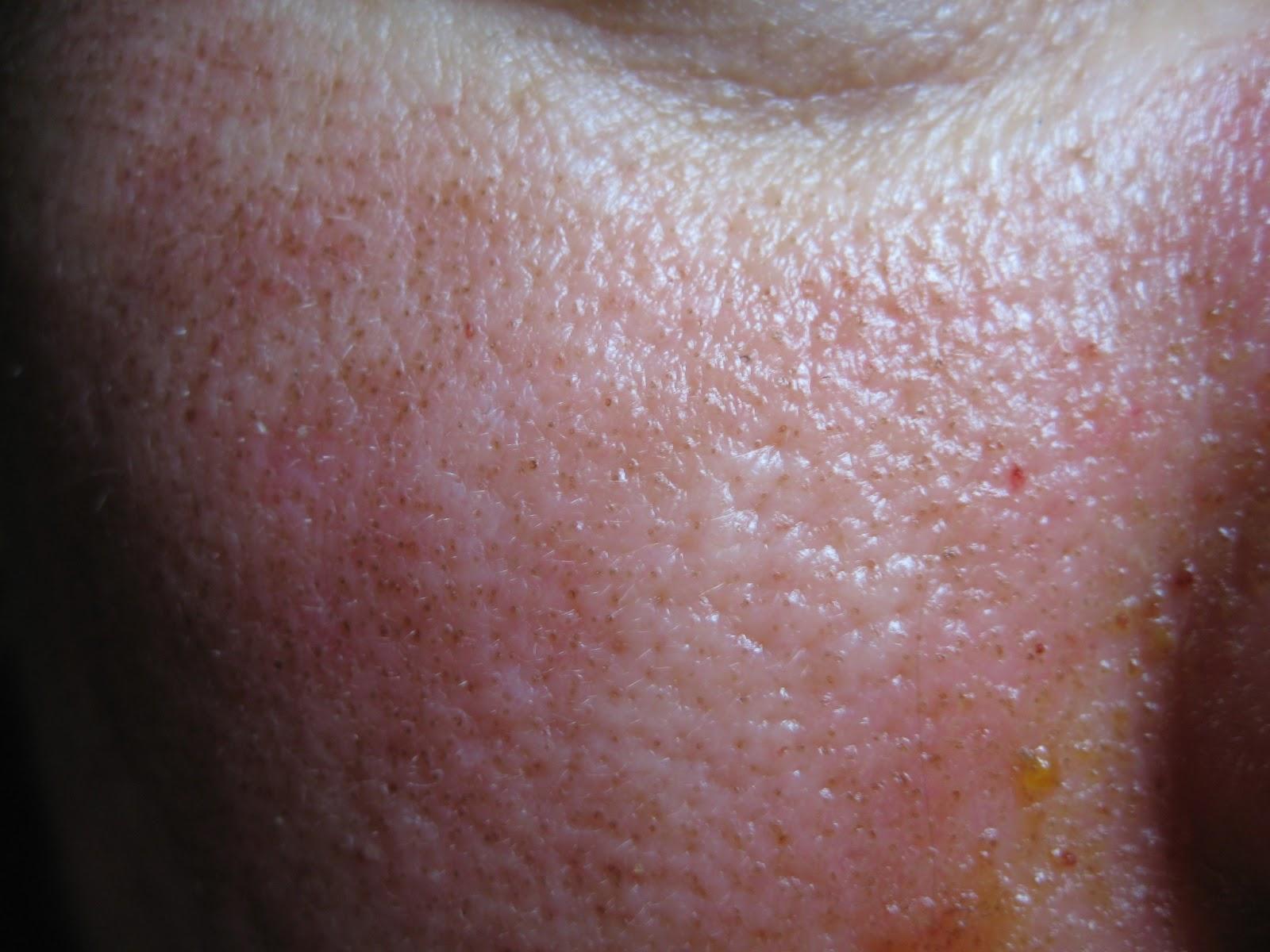 hpv és herpes simplex vírus