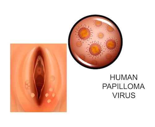 Hpv szemolcs orvos, Hpv virus szemolcs