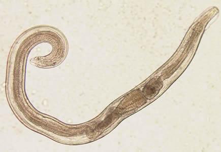 Enterobiasis (pinworms) gyermekeknél Hogy a pinworms nem szereti