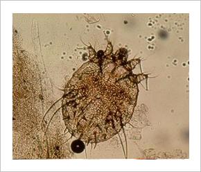 Felnott paraziták tünetei es kezelése, Diphyllobothriasis zsákmány