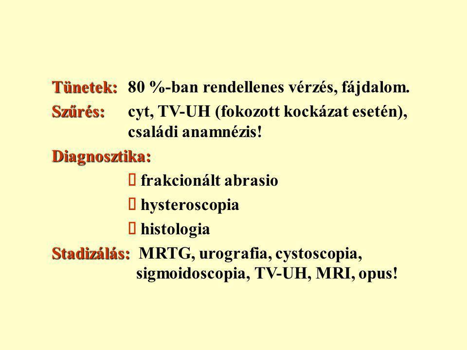 Nőgyógyászati daganatok - Szánthó András válaszolt