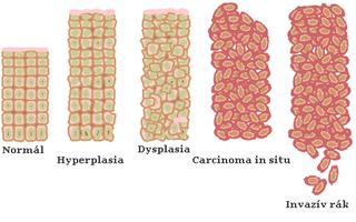 mely tünet vonatkozik az emberi papillomavírus hpv-re)