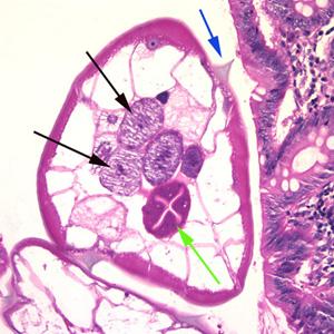 a szarvasmarha-gyűrű testének mérete parazita pinworms