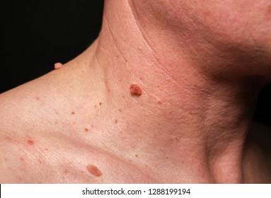 papilloma vírus viszketés