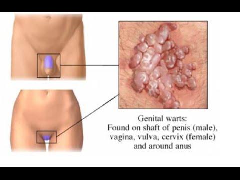 Genitális szemölcs, condyloma