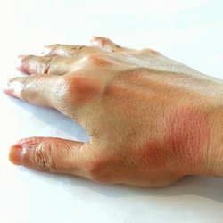 orvosi vizsgálat diiflobotriazis