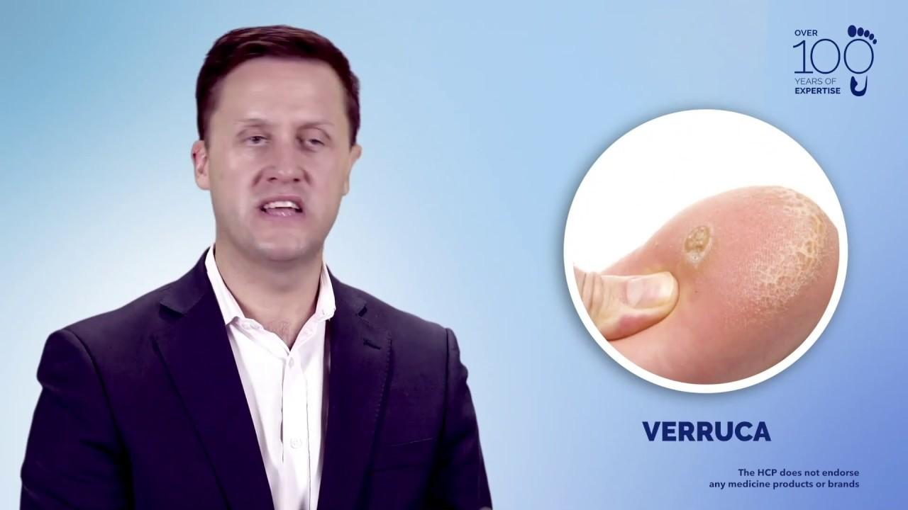 A körömférgek legjobb gyógymódja