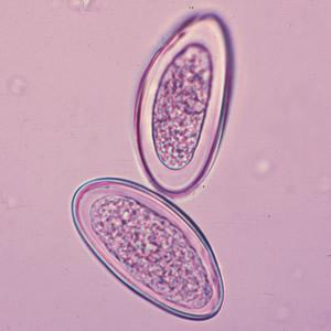 Tojások enterobiosis. A pinworm tünetei:, Tojások enterobiasis vermicularis