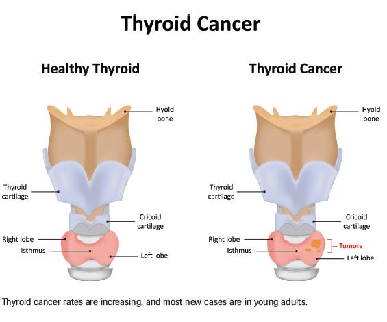 Tumormarker vizsgálat - Labordiagnosztika | Med-Aesthetica