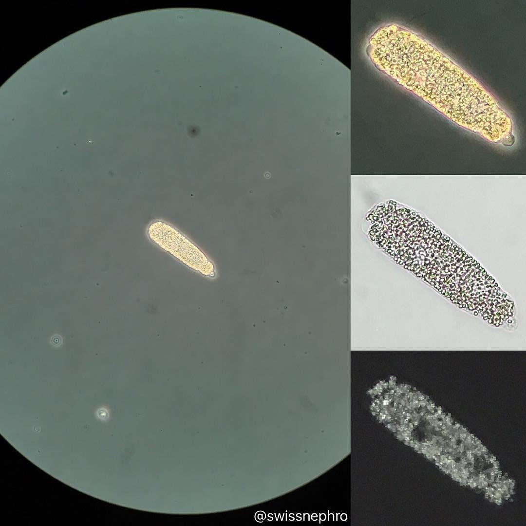 helmint mikrobiológia