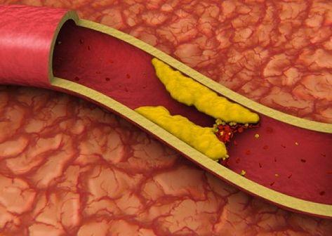 duzzanat a genitális szemölcsök eltávolítása után peritoneális rák talkum