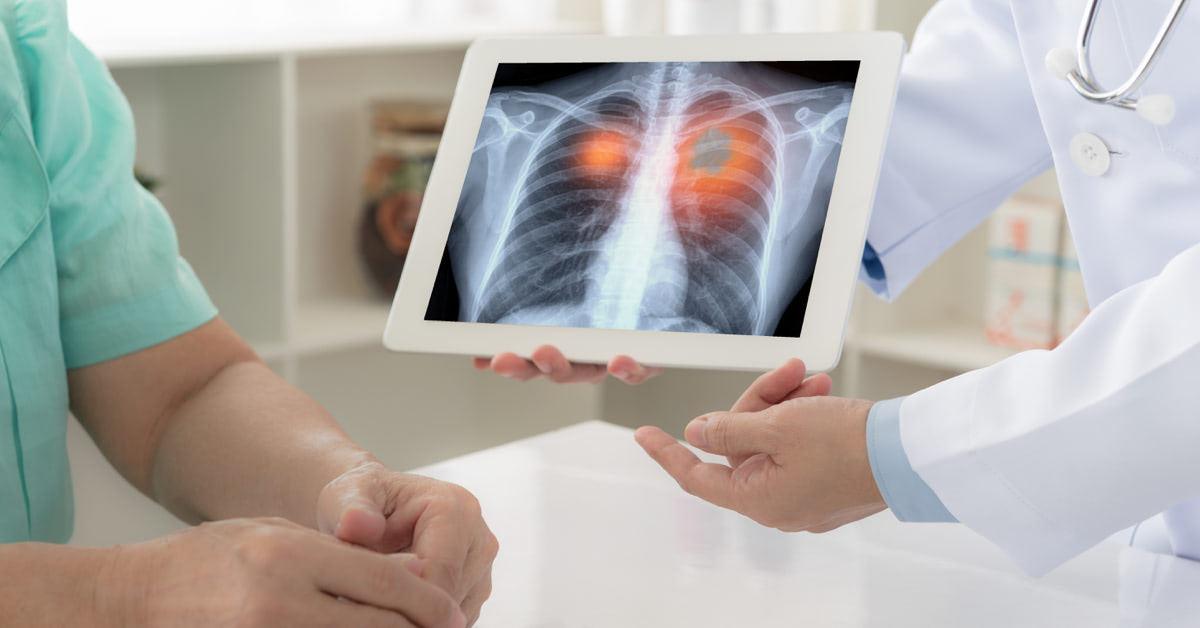 hpv fertőzés és tüdőrák