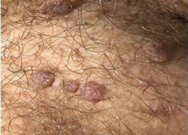 hpv virusunun tedavisi nedir Ingyenes vektor giardia