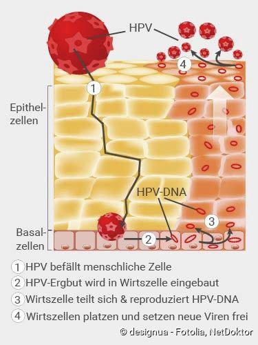 hpv vírus behandlung mann