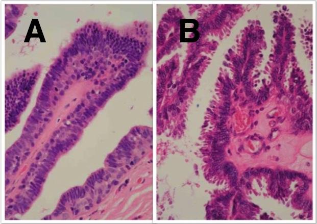 intraductalis papilloma és dcis hogyan lehet meggyógyítani a szemölcsöket, mint