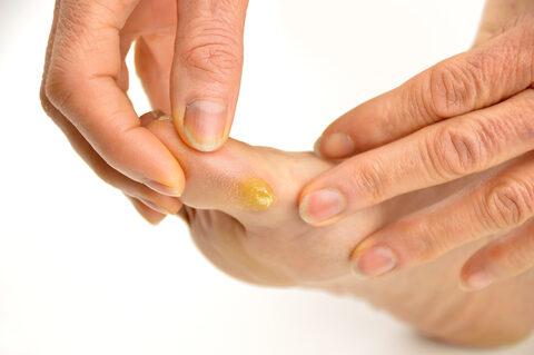 lábszemölcs kezelés a pult felett
