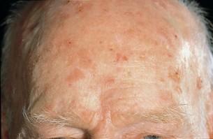 Hogyan kell kiejteni papillomavirus | vadhibiscus.hu