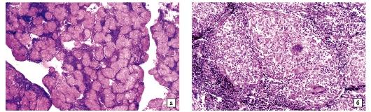 Új adatok a vérehulló fecskefű (Chelidonium majus L.) ismeretanyagához - PDF Free Download