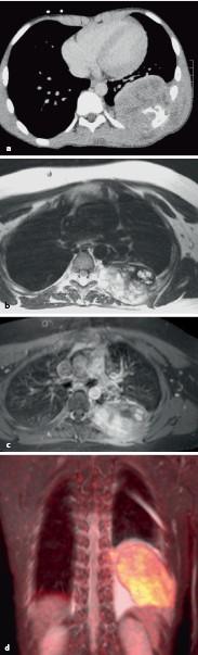 papilloma sinus c2 a condyloma eltávolítása a nemi szerveken