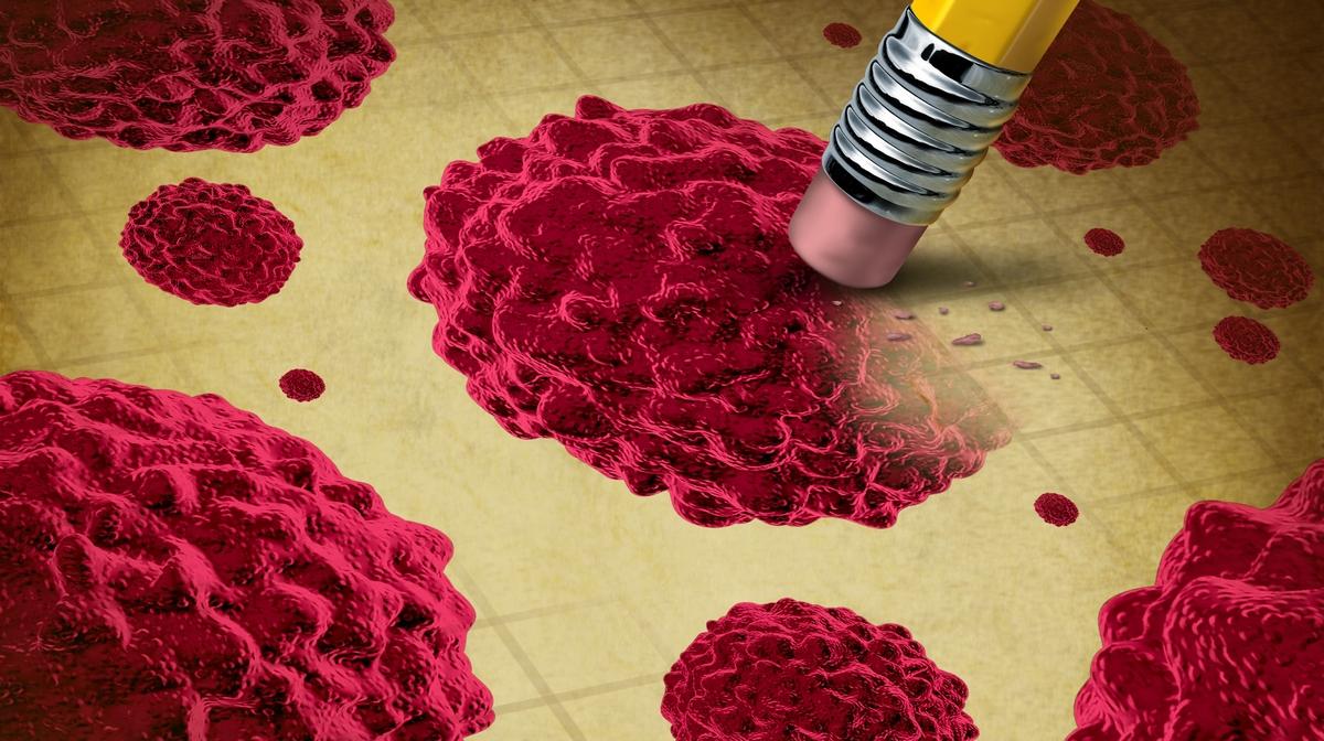 papillomavírus vastagbélrák