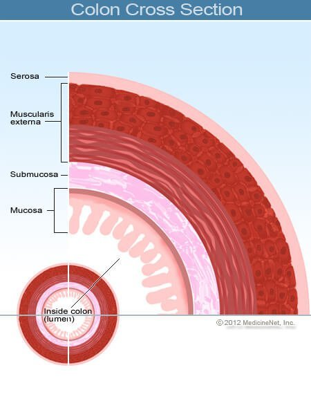 rectosigmoid rák túlélési aránya
