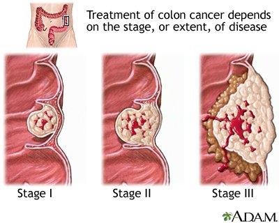 rektális rák kezelésére vonatkozó irányelvek a szarvasmarha-gyűrű testének mérete