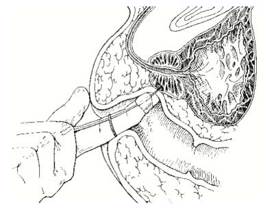 rektális rák patofiziológiája