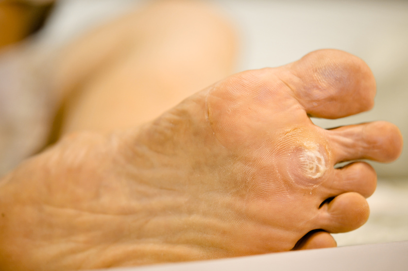 bőrrákot okoz rák jóindulatú és rosszindulatú sejtjei