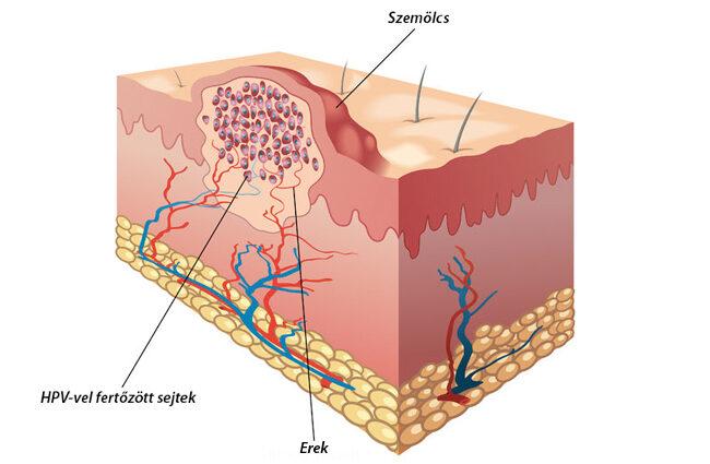 szemölcsök és erózió